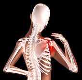 3D render of a female medical skeleton with shoulder pain highlighted