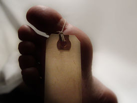 image of autopsy  - Foot of a corpse with a toe tag - JPG