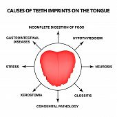 Causes Of Teeth Imprints On The Tongue. Definition Of A Disease According To Human Tongue. Diagnosti poster