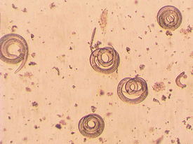 foto of parasite  - Trichinella spiralis - parasitic worm in muscle in microscope