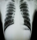 Chest x-ray.