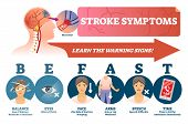 Stroke Symptoms Vector Illustration. Warnings Of Sudden Blood Clot In Head. Labeled List With Reason poster