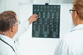 foto of mri  - Senior doctor examines MRI image of human head - JPG