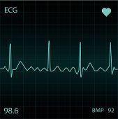 stock photo of blue-screen-of-death  - A Blue ECG Heart monitor display screen - JPG