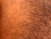 Hairy Skin