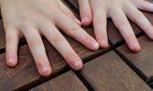 Bitten Fingernails - Bitten Fingers. Close Up Of Hands With Bitten Finger And Fingernails poster