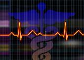 Ilustração de electrocardiograma