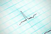 Heartbeat In Motion