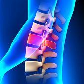 L1 Disc - Lumbar Spine