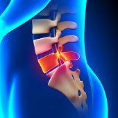 L5 Disc - Lumbar Spine