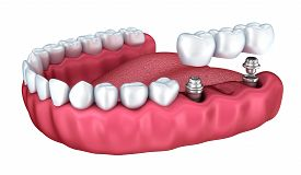 picture of prosthetics  - 3d lower teeth and dental implant isolated on white - JPG