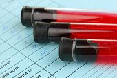 stock photo of scientist  - Blood in test tubes and results close up - JPG
