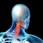 3d rendered illustration - painful neck .