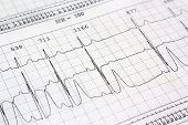 picture of ekg  - Electrocardiogram ekg heart rhythm background medical print - JPG