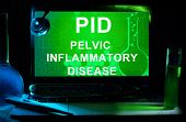 Computer with words Pelvic inflammatory disease (PID).