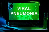Computer with words  Viral pneumonia.