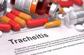 stock photo of pharyngitis  - Tracheitis  - JPG