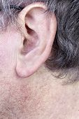image of dandruff  - Hairy ear of elderly man closeup - JPG