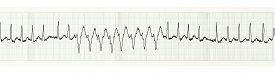 picture of conduction  - Emergency Cardiology - JPG