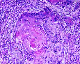 picture of histology  - Squamous cell carcinoma of a human - JPG