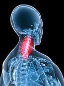 X-Ray Anatomy-Painful Neck