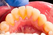 pic of gingivitis  - Dental plaque in human mouth on the denture - JPG