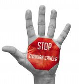 Stop Ovarian Cancer  Concept on Open Hand.