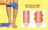 Varicose Veins On A Female Senior Legs. The Structure Of Normal And Varicose Veins. Collage. Lower L poster