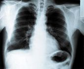 Thorax x-ray of a smoker man