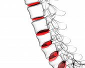 picture of lumbar spine  - 3d rendering - JPG