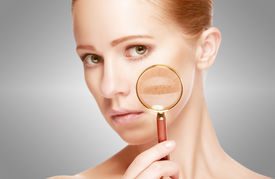 stock photo of freckle face  - concept skincare - JPG