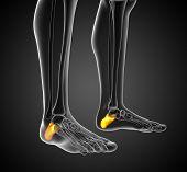 picture of gout  - 3d render illustration of the calcaneus bone  - JPG