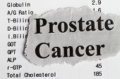 picture of leukemia  - Prostate cancer abstract with medical result and newspaper cutout - JPG