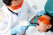 Dentist fixing a cavity on a boy using the laser light