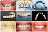 stock photo of prosthesis  - Photographic documentation of the technical steps of dental ceramic bridge - JPG