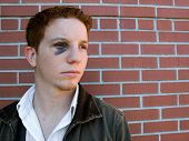 pic of black eyes  - young man with black eye that is starting to heal - JPG