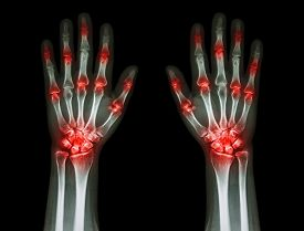 foto of gout  - multiple joint arthritis both hands  - JPG