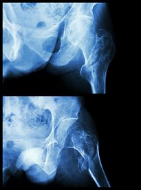 stock photo of fracture  - Fracture head of femur - JPG