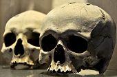 Two Human Skulls