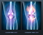 picture of knee  - Normal knee and unhealthy abstract burning knee joint - JPG