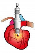 stock photo of autopsy  - illustration of a heart in cardiovascular surgery cut with a spark plug as defibrillator - JPG