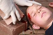 stock photo of scalping  - A boy lying down with blood on his head from an injury and helping hands with gloves nearby - JPG