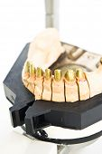 metal dental mold in laboratory