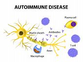 pic of nerve cell  - Autoimmune Disease - JPG