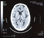 Tomografia de cérebro