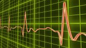 Ecg Line Graph, Heart Beating In Normal Sinus Rhythm, Healthcare And Medicine, Stock Footage poster
