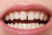 image of tooth gap  - Diastema between the upper incisors is a normal feature - JPG