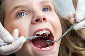Little Girl Having Dental Check Up.