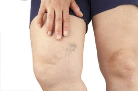 picture of varicose  - Varicose veins - JPG