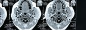 image of magnetic resonance imaging  - Magnetic resonance images of the human body - JPG